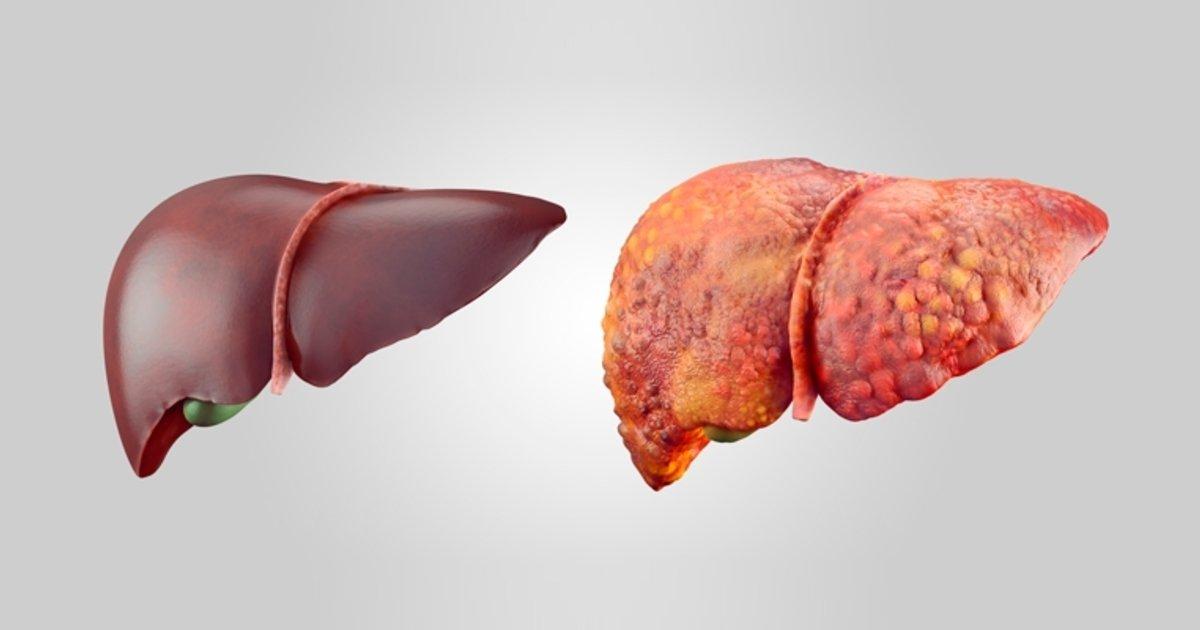 Esteatosis hepática (hígado graso): causas, síntomas y