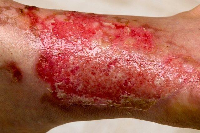 O que é a síndrome da pele escaldada