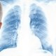 How to treat pneumonia