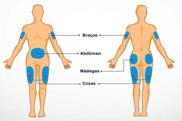 Locais onde se pode aplicar insulina