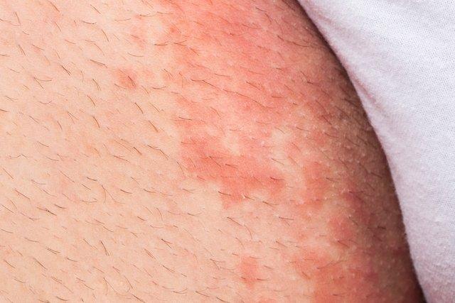 7 tipos de micose de pele e como tratar