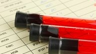 Colesterol LDL alto: causas, síntomas, valores normales y cómo bajarlo