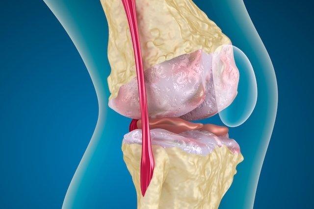 Tratamento para artrose