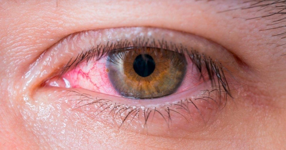 Manzanilla para infecciones de los ojos