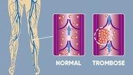 Trombosis Venosa Profunda: Tratamiento, complicaciones y prevención