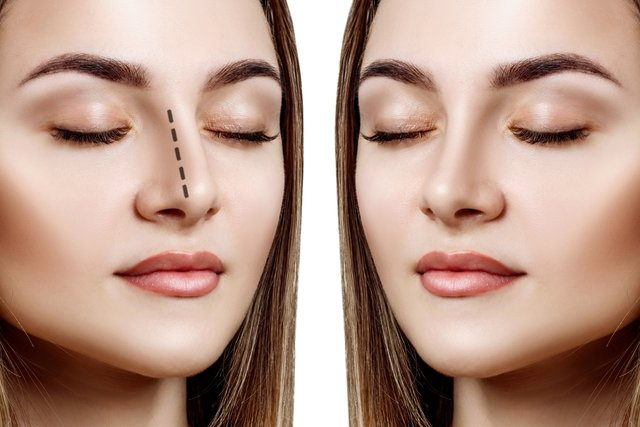 Como afinar o nariz sem cirurgia