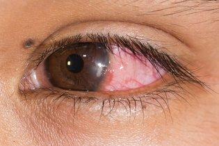 Vermelhidão causada por ceratite