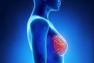 O que é Mastite, como identificar e combater os sintomas