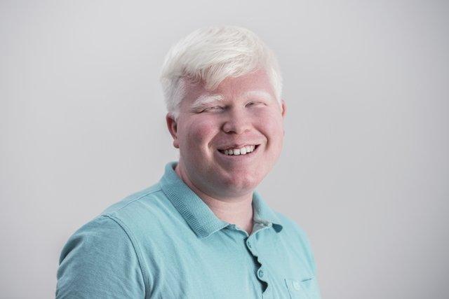 Albinismo: o que é, como identificar e principais cuidados