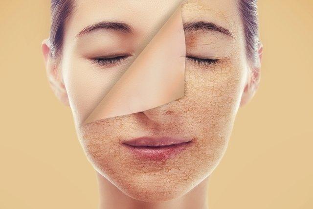 Como clarear a pele: tratamento, opções caseiras e cuidados