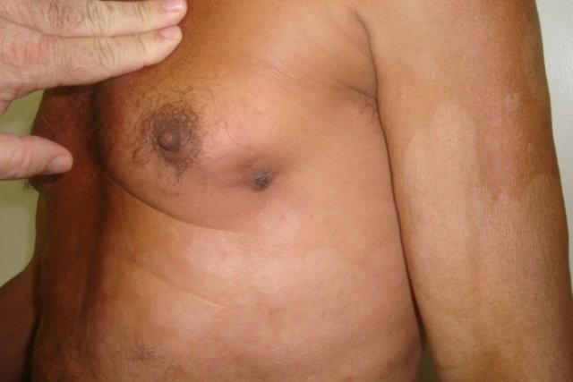 sintomas cancer de pecho en hombres