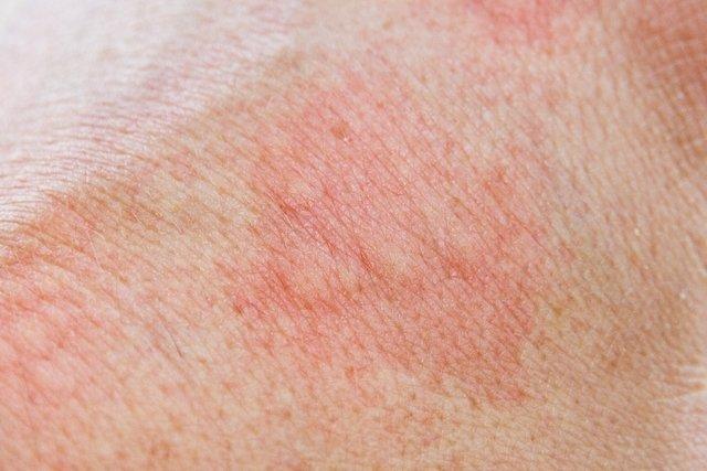 Porfiria: o que é, tipos, sintomas e tratamento
