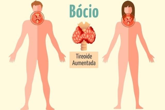 Bócio - O que é e quais os Sintomas