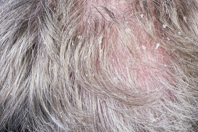 O que pode ser dor no couro cabeludo e o que fazer