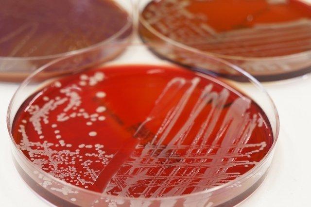O que é infecção no sangue, como identificar e tratar