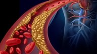 What is VLDL cholesterol and what does it mean when it is high