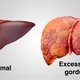 Fatty liver diet: what are the best foods to eat