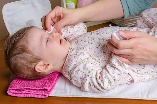 O que pode ser Olhos Remelando no Bebê