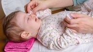Lagañas en bebés: principales causas y tratamiento