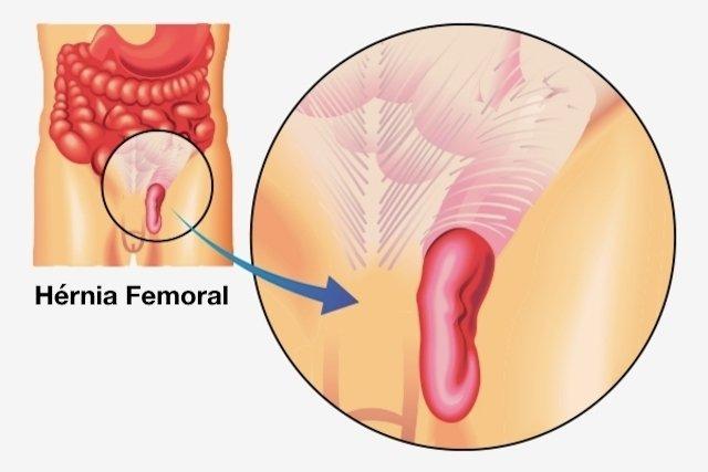 E perna dor feminina entre virilha