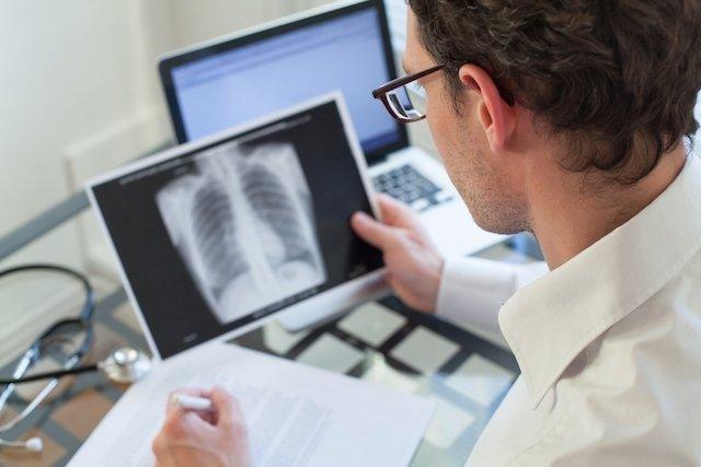 O que é Tuberculose Pleural e como curar