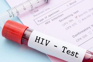 Diagnóstico da AIDS