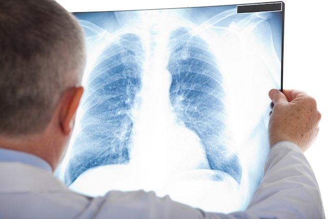 Como tratar a pneumonia