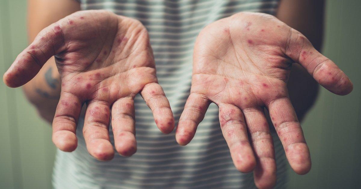 cuales son los sintomas de la sifilis terciaria