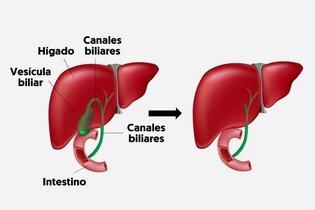 Hígado con y sin vesicula