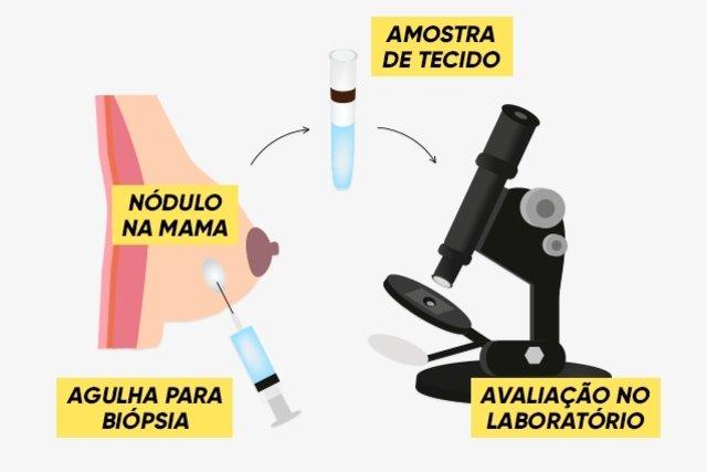 Como é feita a biópsia da mama e resultados
