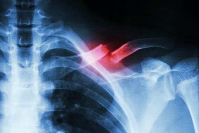 Como identificar a clavícula quebrada, principais causas e tratamento