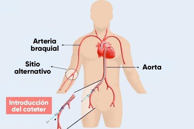 Cómo es hecho el cateterismo cardíaco