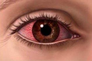 Como tirar a Mancha de Sangue no Olho