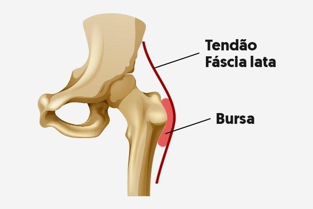 dor nas articulações da coxa esquerda