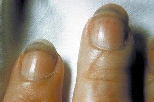 Hemorragia debaixo das unhas