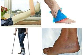 Como tratar a luxação do tornozelo em casa