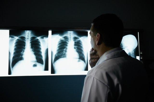 O que é bronquiectasia pulmonar e como é feito o tratamento