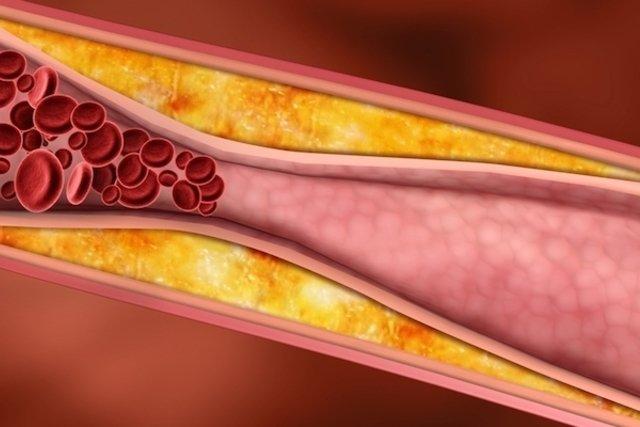 Valores para cada tipo de colesterol - LDL, HDL, VLDL y total