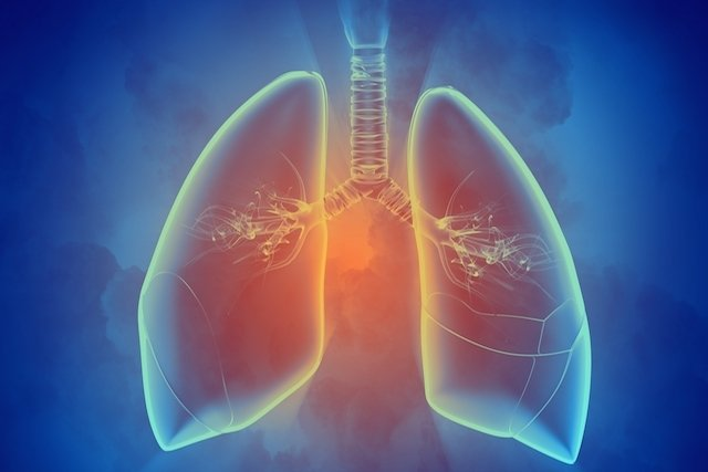 O que é Cintilografia Pulmonar e para que serve