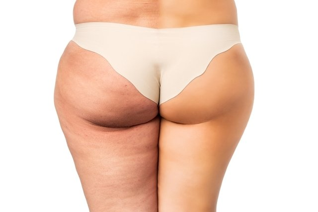 Carboxiterapia elimina estrias, celulite, olheiras e gordura localizada