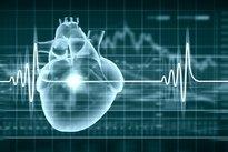 como curar las arritmias cardiacas
