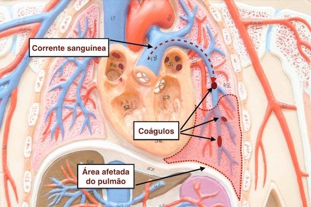 Tratamento para Embolia Pulmonar