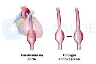 Tratamento endovascular