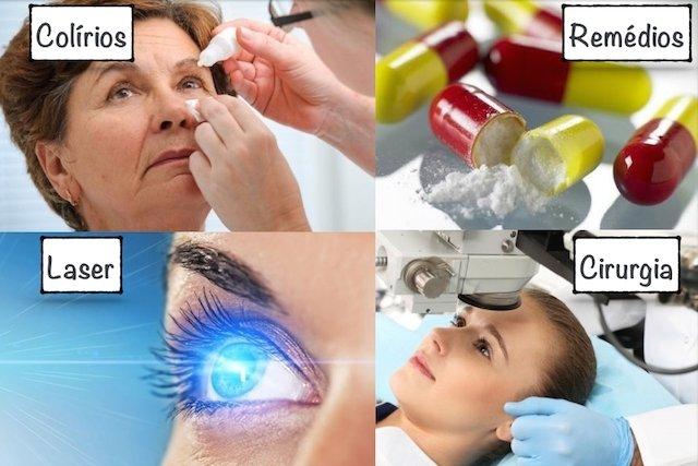 Glaucoma tem cura?