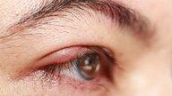 Calázio no olho: o que é, sintomas, causas e tratamento
