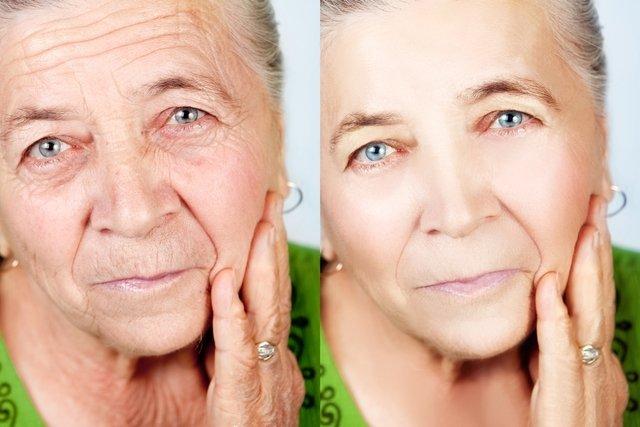 Antes e depois da cirurgia ao rosto