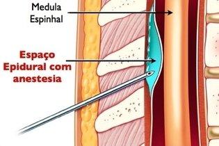 O que é a Anestesia peridural e para que serve