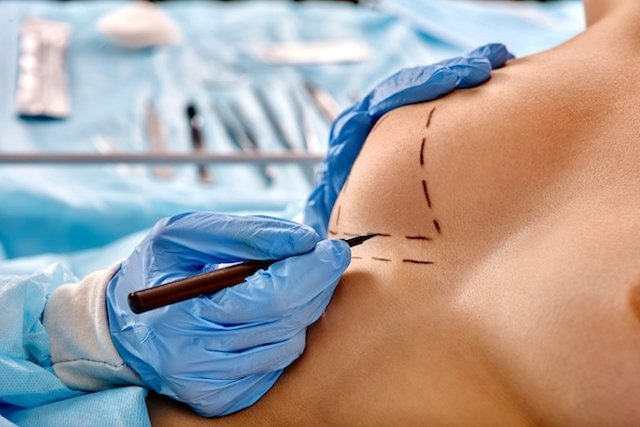 Operación de senos para levantar las mamas caídas