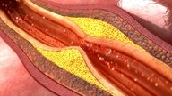 Aterosclerosis: Qué es, síntomas, causas y tratamiento