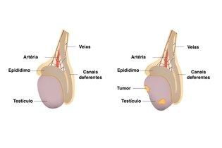 Presença de tumor no testículo